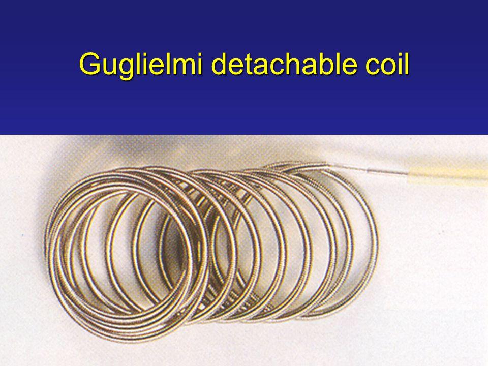 Guglielmi detachable coil