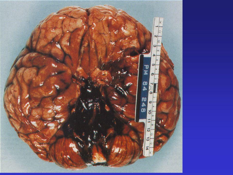 Basilar artery aneurysm before coiling