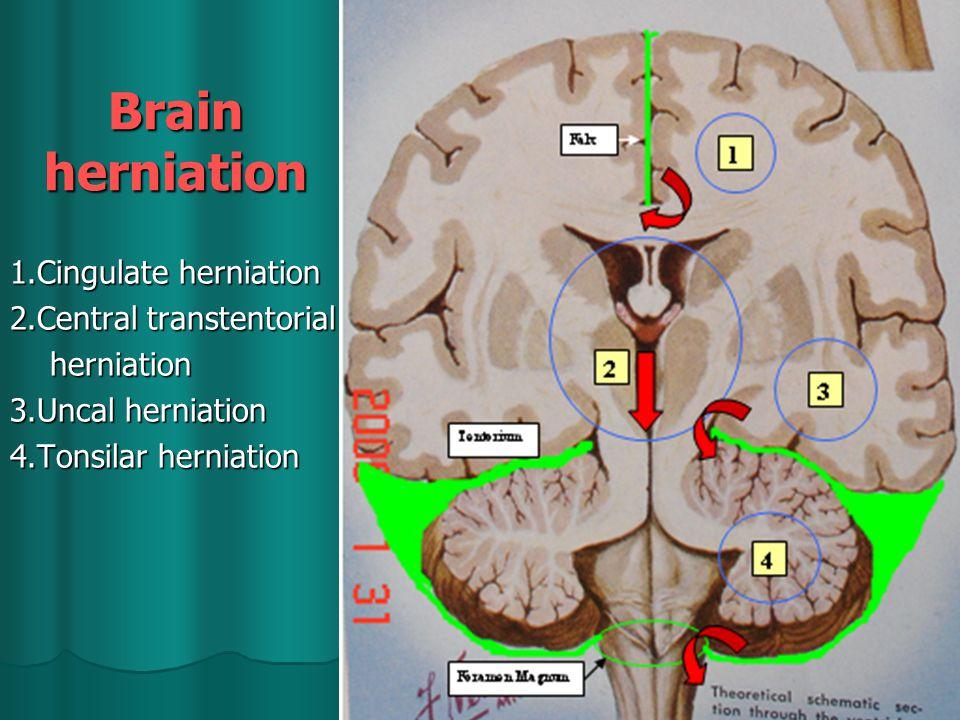 1.Cingulate herniation 2.Central transtentorial herniation herniation 3.Uncal herniation 4.Tonsilar herniation Brain herniation