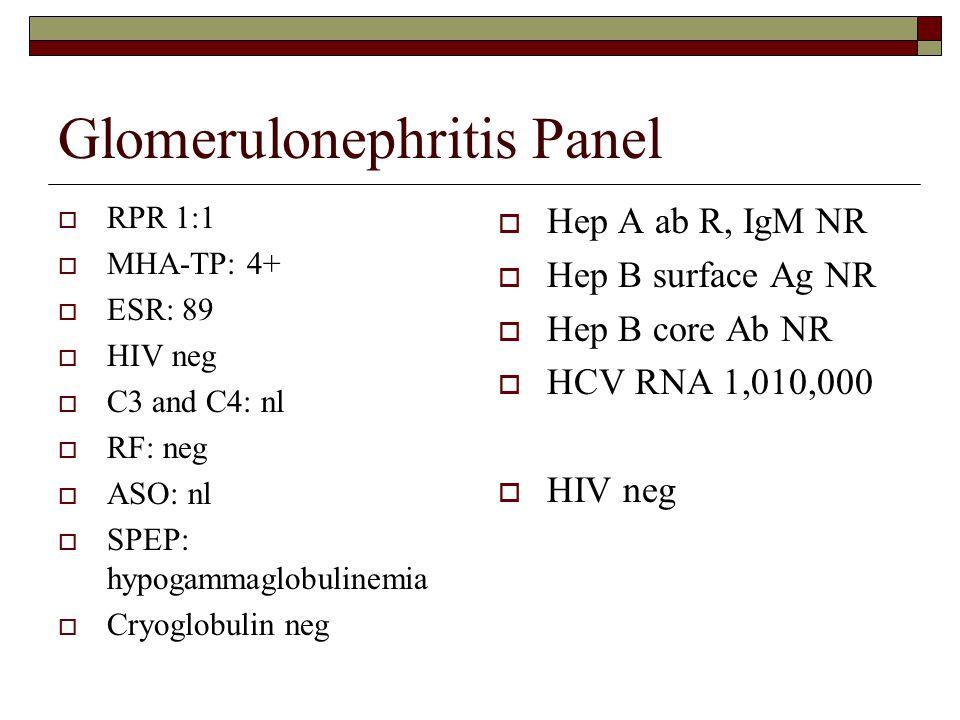 Glomerulonephritis Panel  RPR 1:1  MHA-TP: 4+  ESR: 89  HIV neg  C3 and C4: nl  RF: neg  ASO: nl  SPEP: hypogammaglobulinemia  Cryoglobulin n