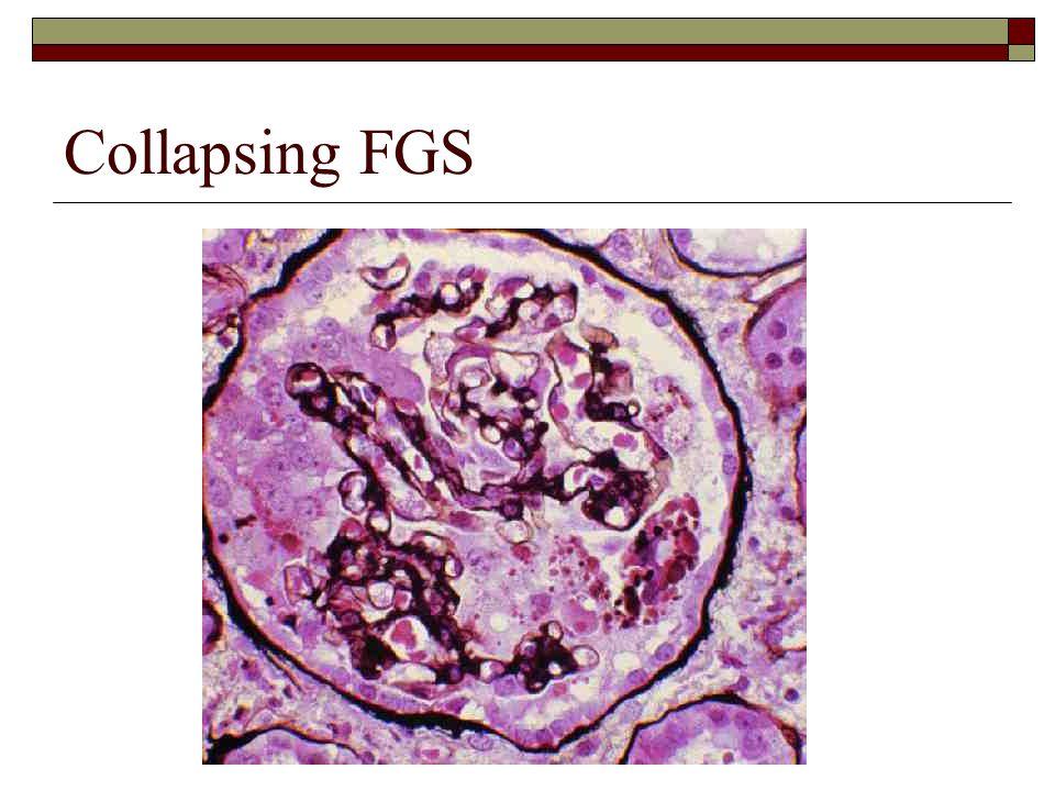 Collapsing FGS