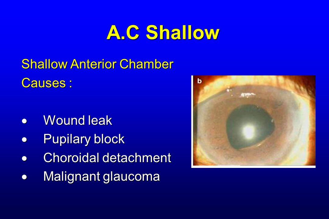 A.C Shallow Shallow Anterior Chamber Causes :  Wound leak  Pupilary block  Choroidal detachment  Malignant glaucoma