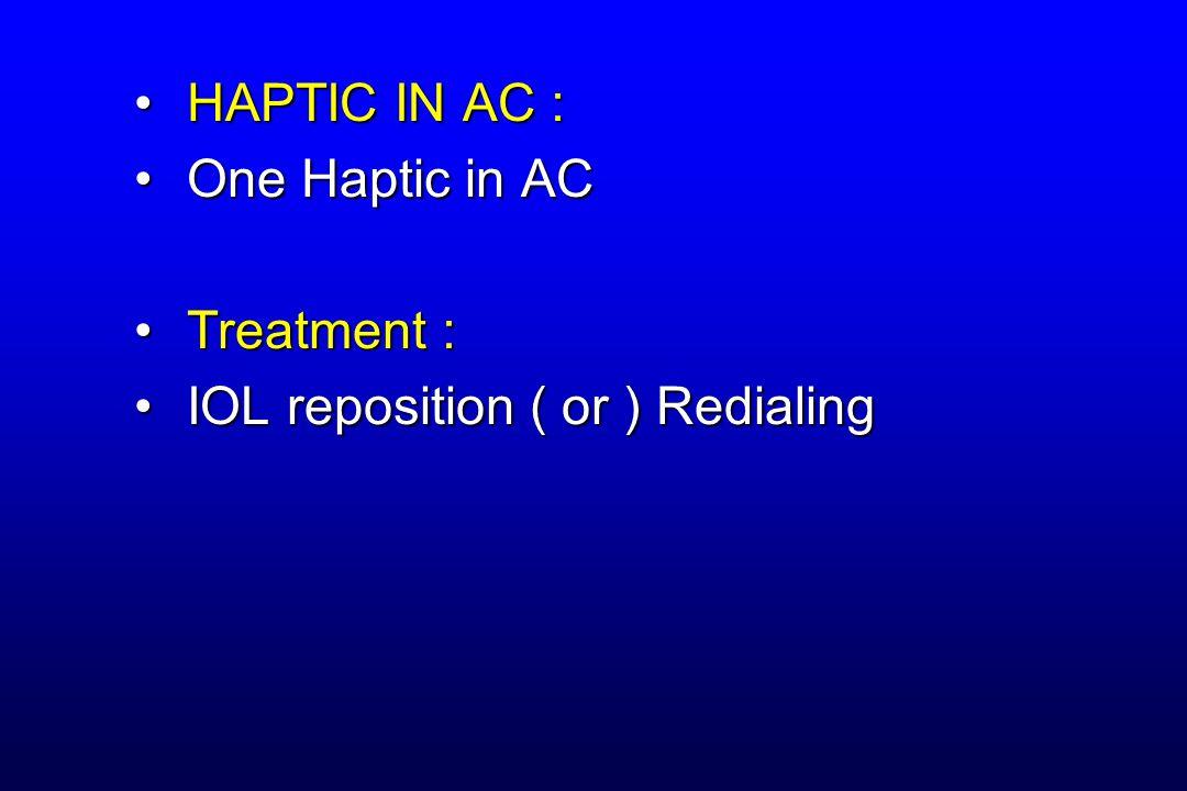 HAPTIC IN AC :HAPTIC IN AC : One Haptic in ACOne Haptic in AC Treatment :Treatment : IOL reposition ( or ) RedialingIOL reposition ( or ) Redialing