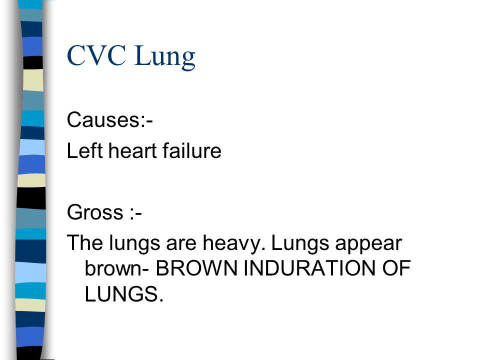Mechanism heart failure left heart failure right heart failure Pressure into pressure into the Pulmonary vein systemic venous system CVC LUNGS CVC LIV