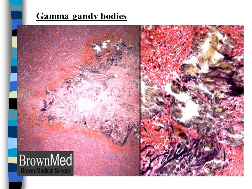CVC Spleen (micro) Red pulp appears congested. GAMMA GANDY BODIES OR SIDEROFIBROTIC NODULES:- Deposits of hemosiderin & calcium salts on fibrous tissu