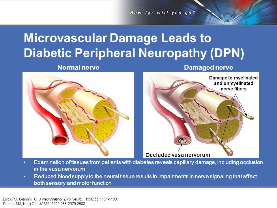 Microvascular Damage Leads to Diabetic Peripheral Neuropathy (DPN) Examination of tissues from patients with diabetes reveals capillary damage, including occlusion in the vasa nervorum Reduced blood supply to the neural tissue results in impairments in nerve signaling that affect both sensory and motor function Dyck PJ, Giannini C.