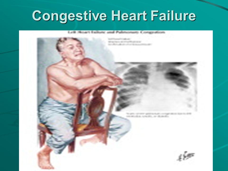 congestive heart failure outline