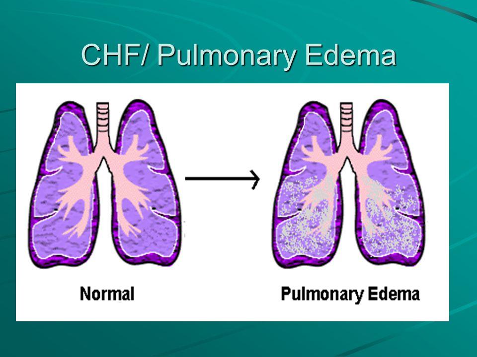 CHF/ Pulmonary Edema