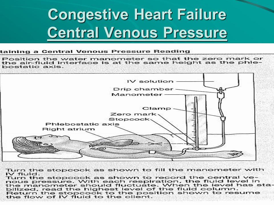Congestive Heart Failure Central Venous Pressure