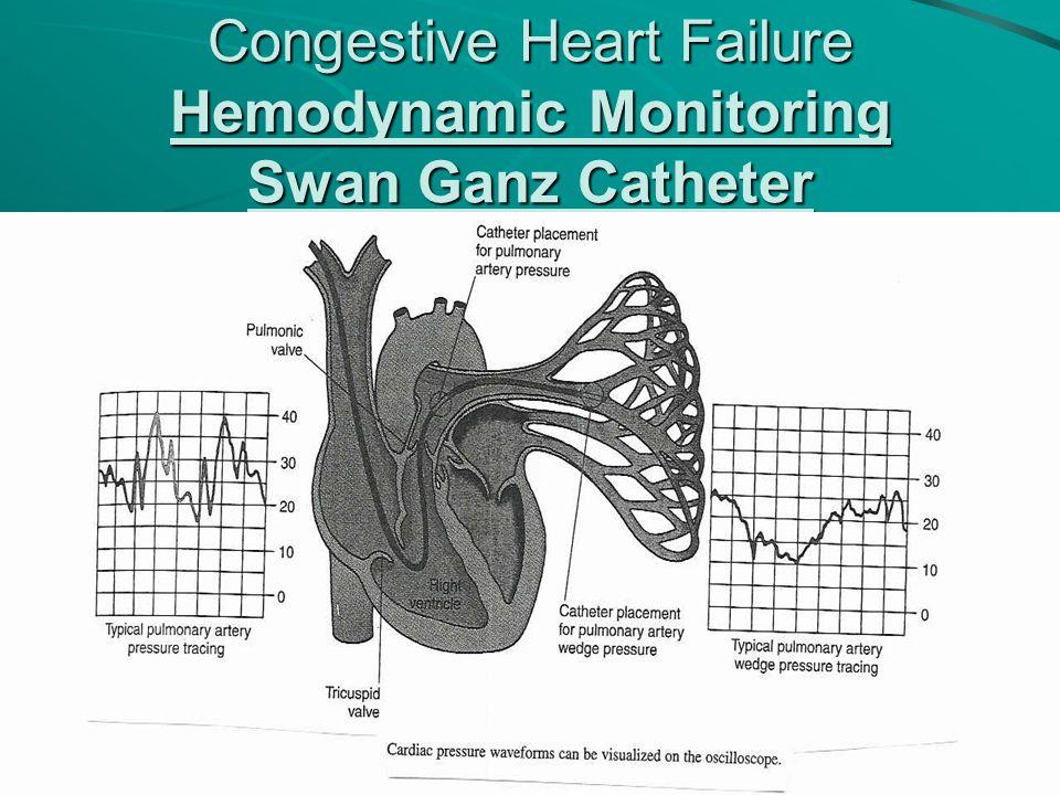 Congestive Heart Failure Hemodynamic Monitoring Swan Ganz Catheter