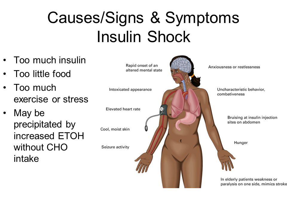 Causes/Signs & Symptoms Insulin Shock Too much insulin Too little food Too much exercise or stress May be precipitated by increased ETOH without CHO i