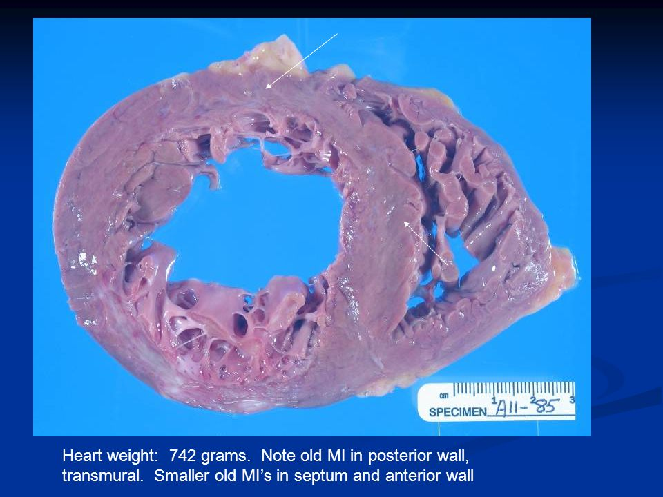 Heart weight: 742 grams. Note old MI in posterior wall, transmural.