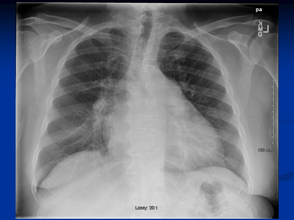 Left lung: 670 gramsRight lung: 1620 grams Note large disparity between the two lungs, due to severe right lung edema.