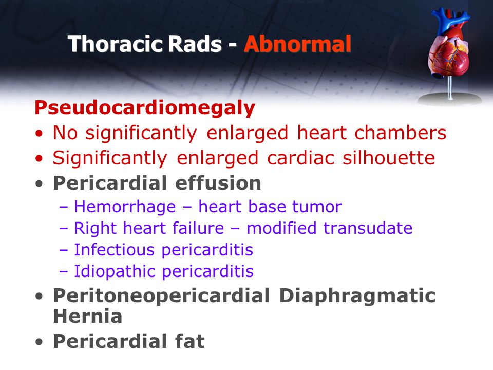 Thoracic Rads - Abnormal Pseudocardiomegaly No significantly enlarged heart chambers Significantly enlarged cardiac silhouette Pericardial effusion –Hemorrhage – heart base tumor –Right heart failure – modified transudate –Infectious pericarditis –Idiopathic pericarditis Peritoneopericardial Diaphragmatic Hernia Pericardial fat