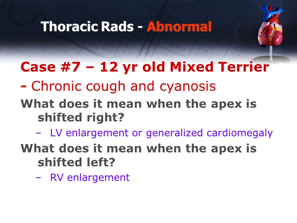 Thoracic Rads - Abnormal Case #7 – 12 yr old Mixed Terrier - Chronic cough and cyanosis What does it mean when the apex is shifted right.