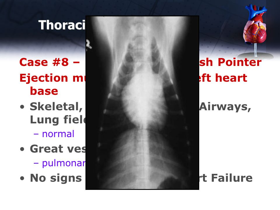 Thoracic Rads - Abnormal Case #8 – 10 month old English Pointer Ejection murmur loudest at left heart base Skeletal, Cranial Abdomen, Airways, Lung fields, small vessels –normal Great vessels –pulmonary artery enlarged No signs of Congestive Heart Failure