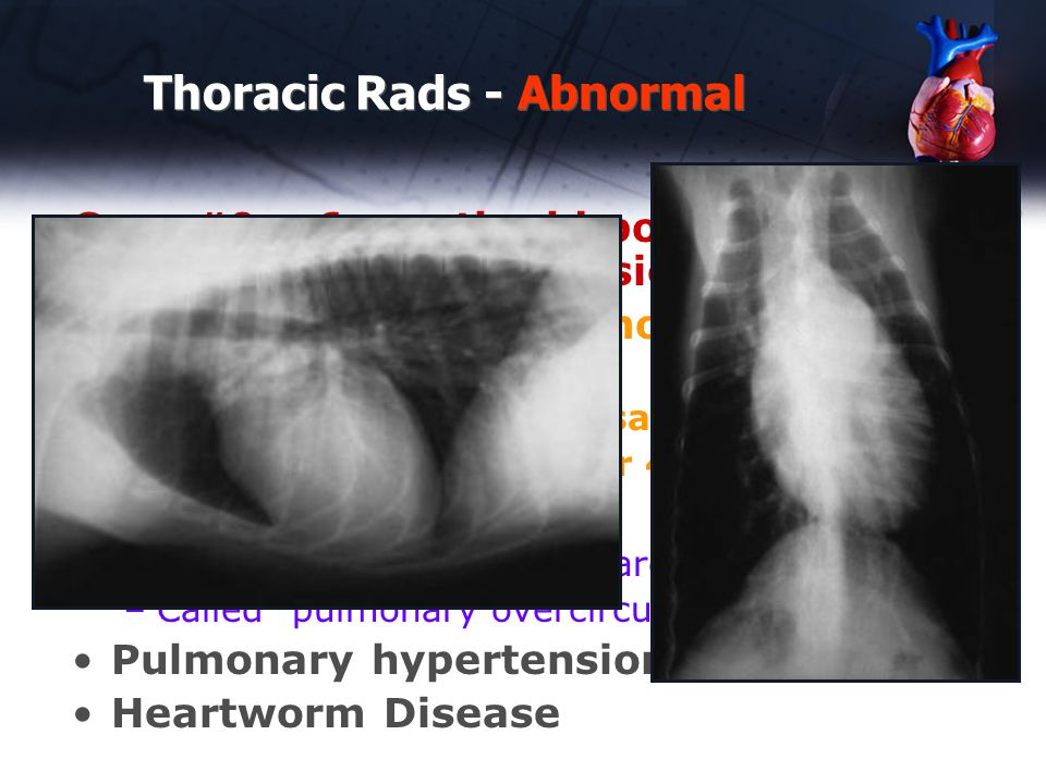 Thoracic Rads - Abnormal Case #9 – 6 month old poodle with murmur found on physical exam Causes of enlarged pulmonary lobar arteries -Caudal lobar aa should be same width as a rib -cranial lobar aa 0.75x 3 rd or 4 th rib PDA –Pulmonary lobar veins enlarged also –Called pulmonary overcirculation Pulmonary hypertension Heartworm Disease