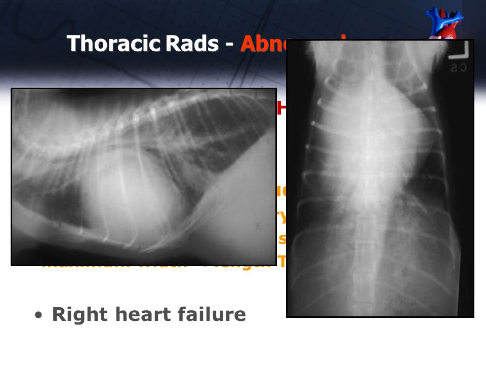 Thoracic Rads - Abnormal Case #10 – 5 yr old DSH cat tachypnea Causes of enlarged Caudal vena cava -size varies with respiratory cycle -only severe enlargement is reliably detected -maximum width < length T5 or T6 Right heart failure