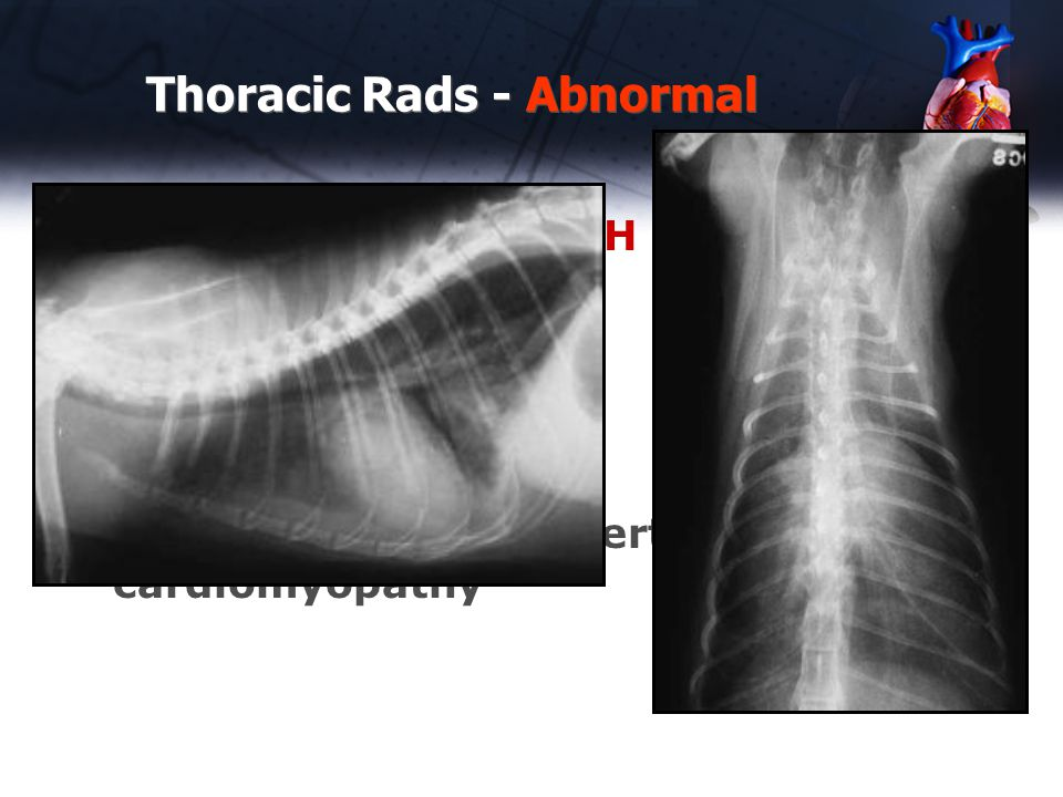 Thoracic Rads - Abnormal Case #11 – 2 yr old DSH cat tachypnea Left Heart Failure Right Heart failure Echo diagnosis – hypertrophic cardiomyopathy