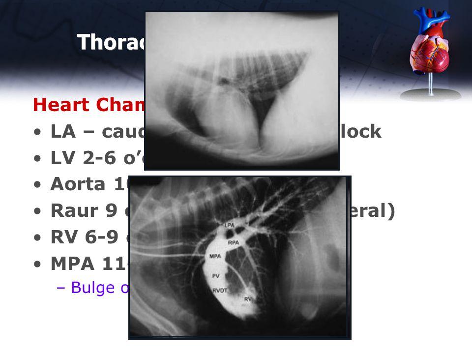 Thoracic Rads - Normal Heart Chambers – Lateral LA – caudal waist – 12-3 o'clock LV 2-6 o'clock Aorta 10-11 o'clock Raur 9 o'clock (RA not on lateral) RV 6-9 o'clock MPA 11-12 o'clock normal –Bulge often 1-2 o'clock