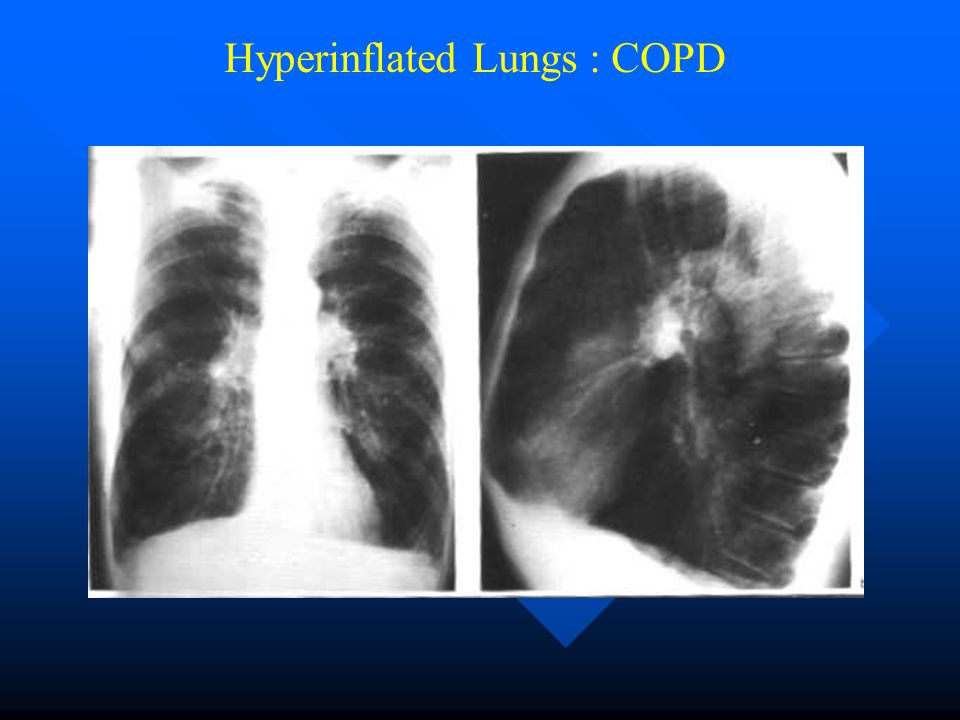 Hyperinflated Lungs : COPD