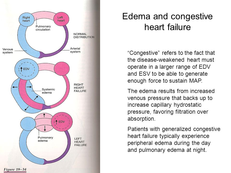 Edema and congestive heart failure Congestive refers to the fact that the disease-weakened heart must operate in a larger range of EDV and ESV to be able to generate enough force to sustain MAP.