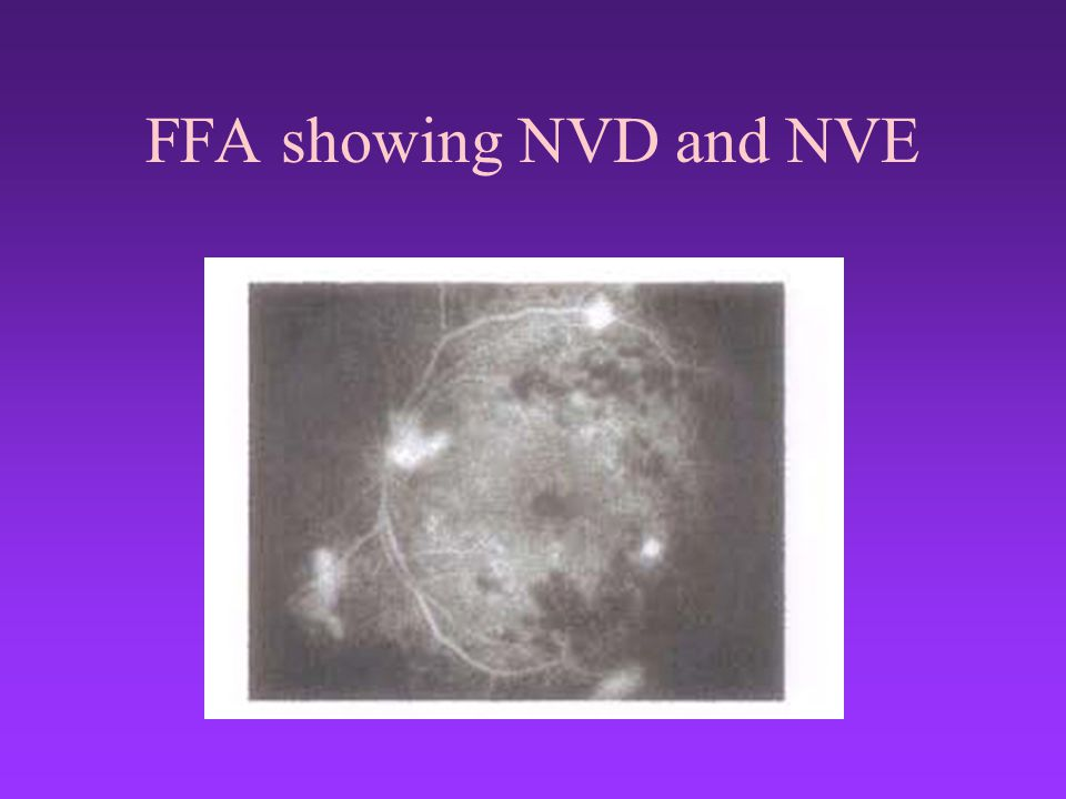 FFA showing NVD and NVE