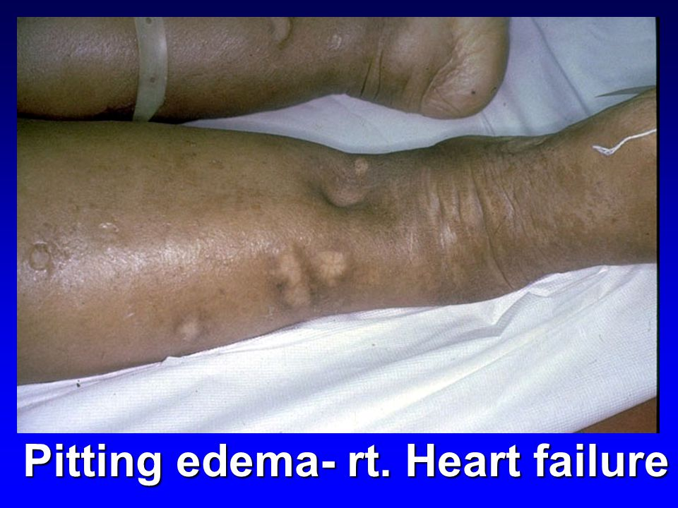 Pitting edema- rt. Heart failure
