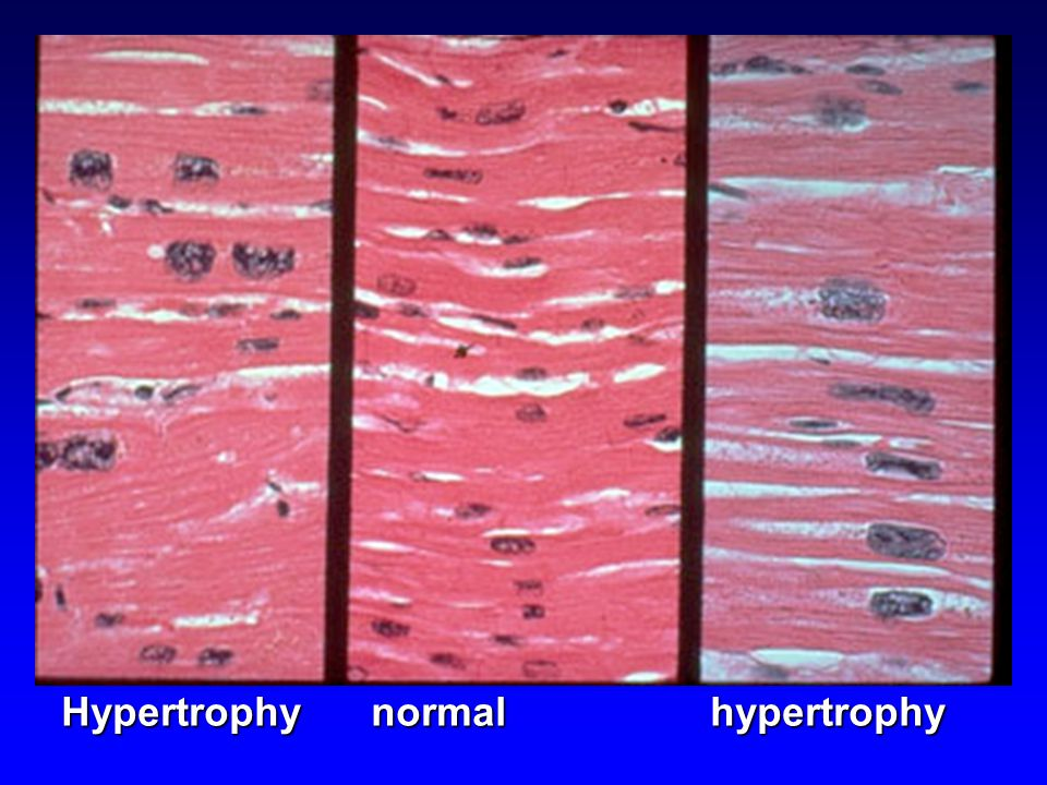 Hypertrophy normal hypertrophy