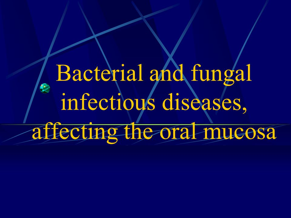Acute disease from the group of respiratory infections which characterized by fibrinous inflammation of mucous membranes of oral cavity, nasopharynx, larynx with toxic lesion of cardiovascular and nervous systems