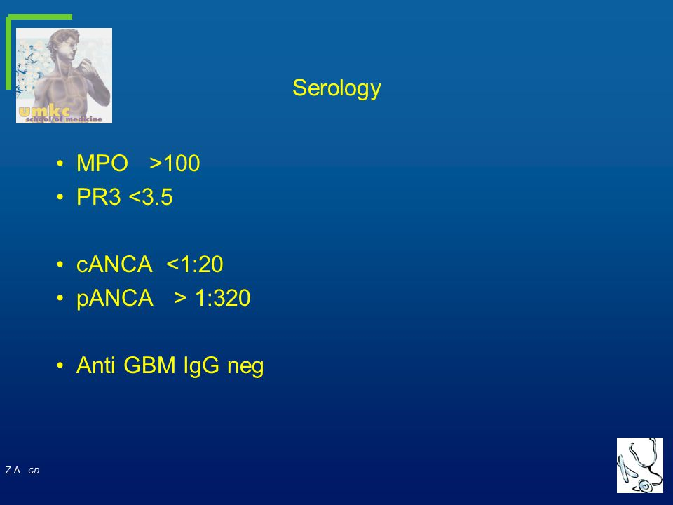 Z A CD Serology MPO >100 PR3 <3.5 cANCA <1:20 pANCA > 1:320 Anti GBM IgG neg