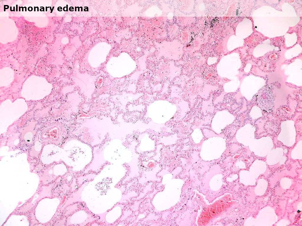 Chronic passive congestion of the liver - centrilobular necrosis and/ or - fibrosis (cardiac cirrhosis)