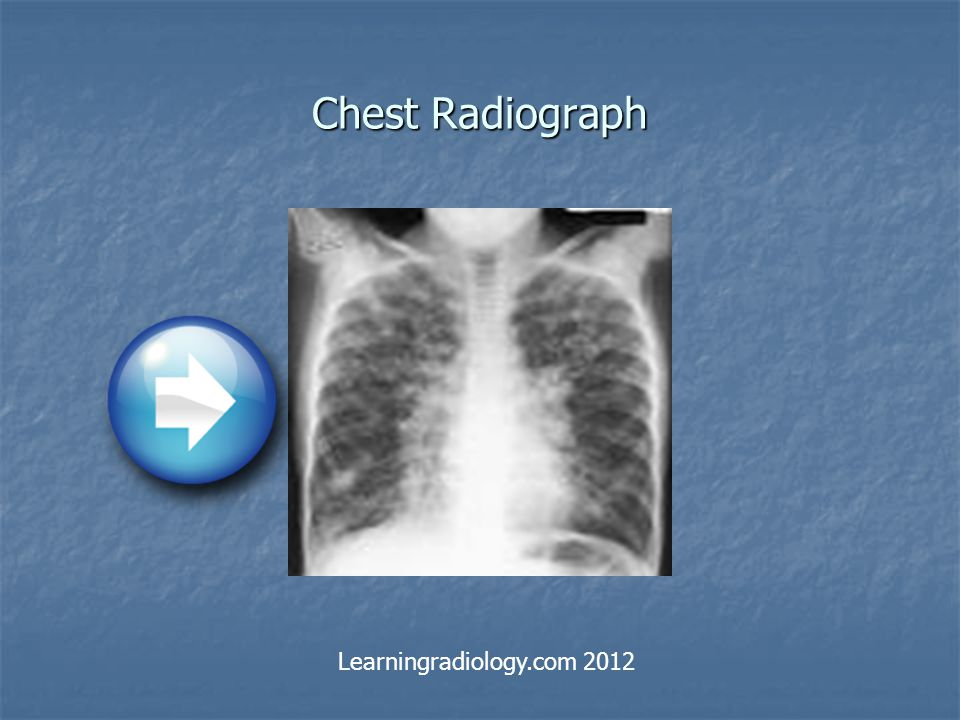 Chest Radiograph Learningradiology.com 2012