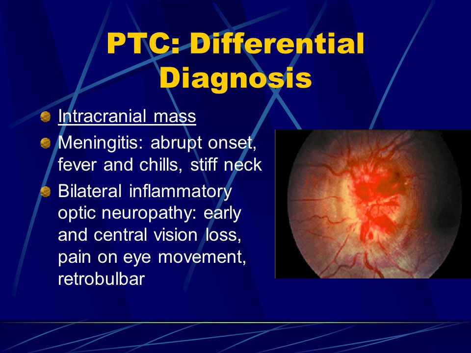 PTC: Differential Diagnosis Intracranial mass Meningitis: abrupt onset, fever and chills, stiff neck Bilateral inflammatory optic neuropathy: early an