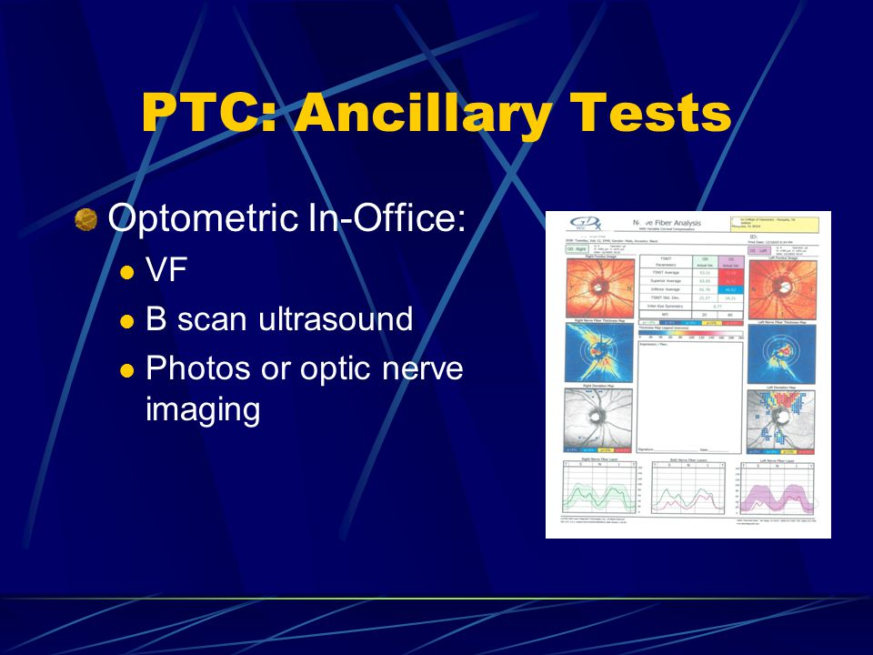 PTC: Ancillary Tests Optometric In-Office: VF B scan ultrasound Photos or optic nerve imaging
