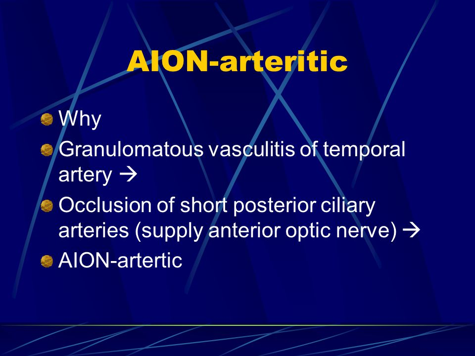 AION-arteritic Why Granulomatous vasculitis of temporal artery  Occlusion of short posterior ciliary arteries (supply anterior optic nerve)  AION-ar