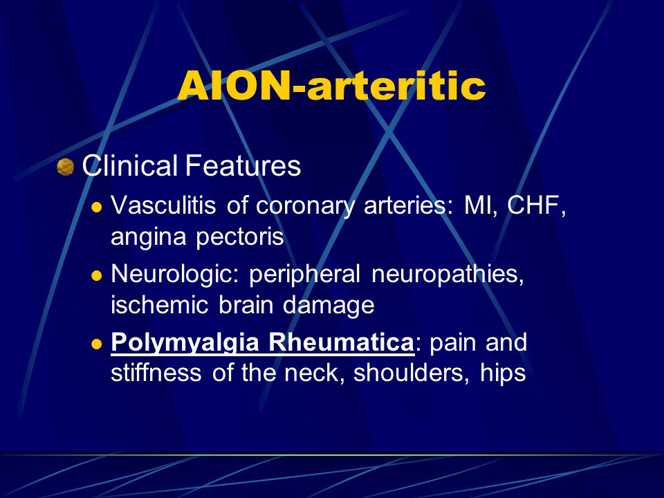 AION-arteritic Clinical Features Vasculitis of coronary arteries: MI, CHF, angina pectoris Neurologic: peripheral neuropathies, ischemic brain damage