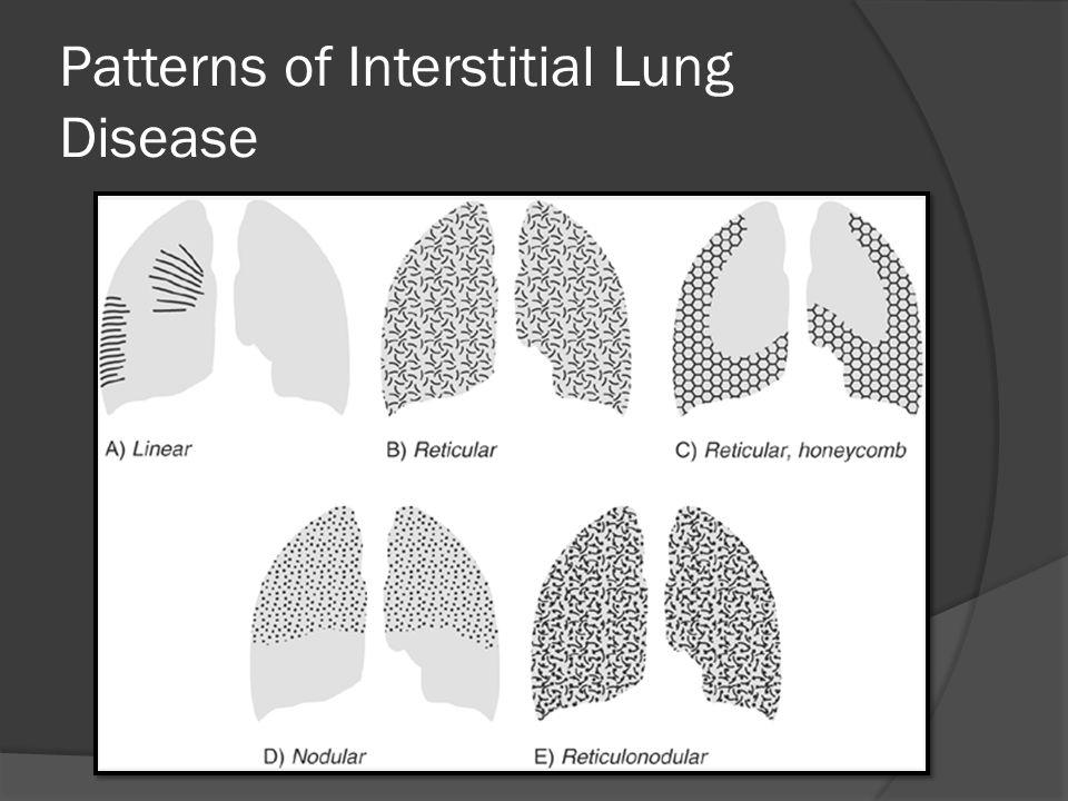 1.Acute P.Edema Pneumonia 2.