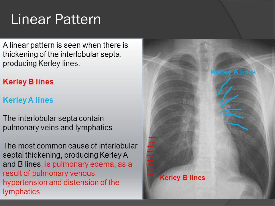 DD of Kerly Lines: Pulmonary edema is the most common cause Mitral stenosis Lymphangitic carcinomatosis Malignant lymphoma Congenital lymphangiectasia Idiopathic pulmonary fibrosis Pneumoconiosis Sarcoidosis