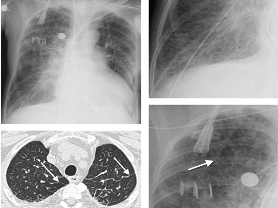 Associated pleural thickening and/or calcification suggest asbestosis. Rule no. 5