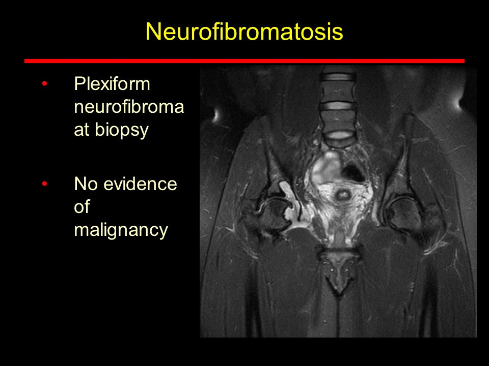 Neurofibromatosis Plexiform neurofibroma at biopsy No evidence of malignancy