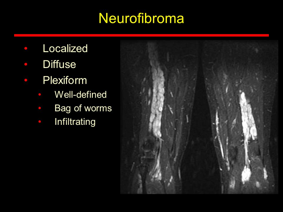 Neurofibroma Localized Diffuse Plexiform Well-defined Bag of worms Infiltrating