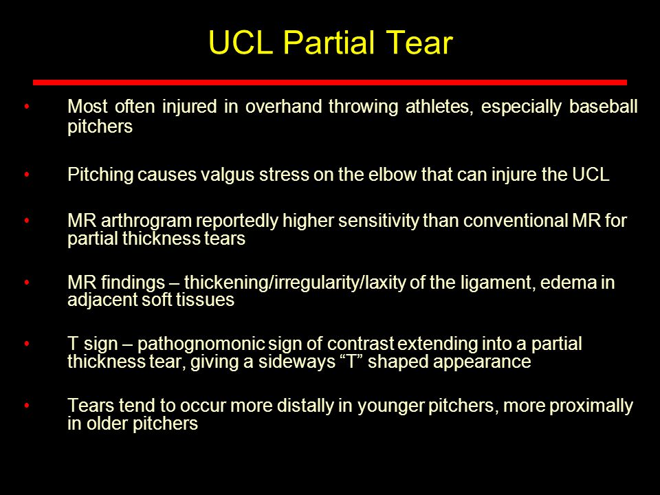 UCL Partial Tear Most often injured in overhand throwing athletes, especially baseball pitchers Pitching causes valgus stress on the elbow that can injure the UCL MR arthrogram reportedly higher sensitivity than conventional MR for partial thickness tears MR findings – thickening/irregularity/laxity of the ligament, edema in adjacent soft tissues T sign – pathognomonic sign of contrast extending into a partial thickness tear, giving a sideways T shaped appearance Tears tend to occur more distally in younger pitchers, more proximally in older pitchers