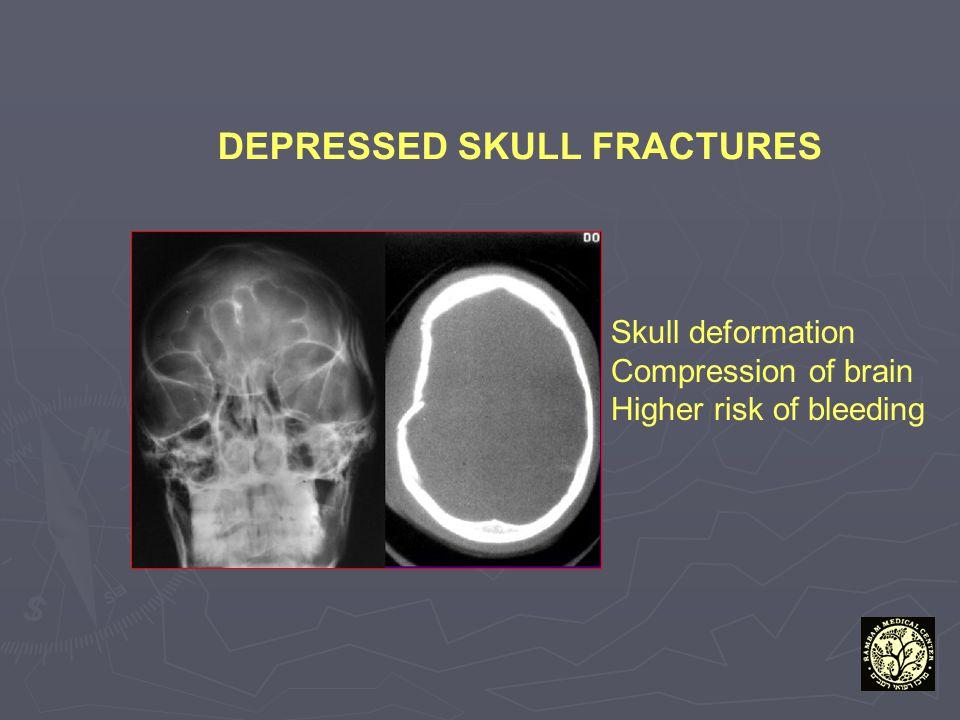 DEPRESSED SKULL FRACTURES Skull deformation Compression of brain Higher risk of bleeding