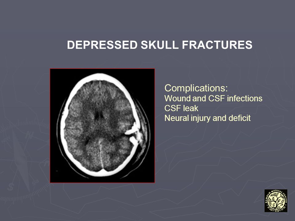 DEPRESSED SKULL FRACTURES Complications: Wound and CSF infections CSF leak Neural injury and deficit