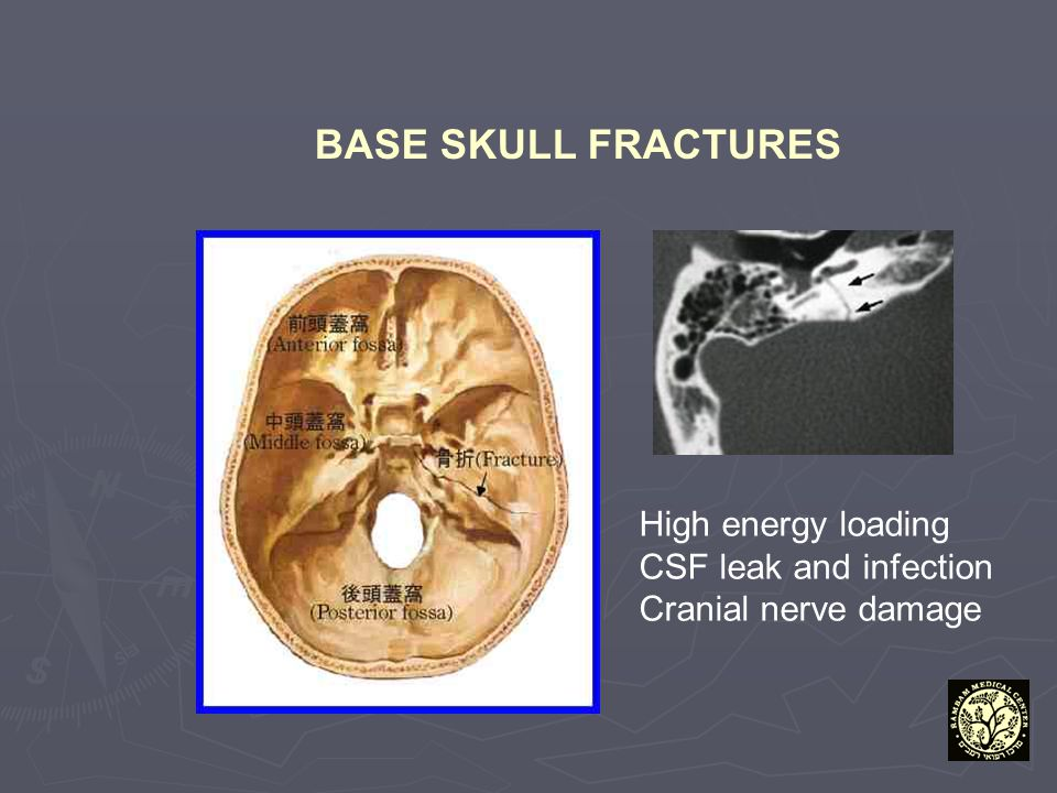 BASE SKULL FRACTURES High energy loading CSF leak and infection Cranial nerve damage