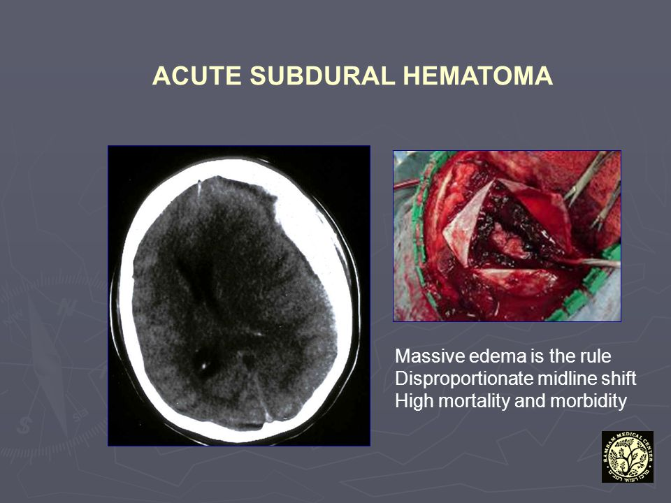 ACUTE SUBDURAL HEMATOMA Massive edema is the rule Disproportionate midline shift High mortality and morbidity