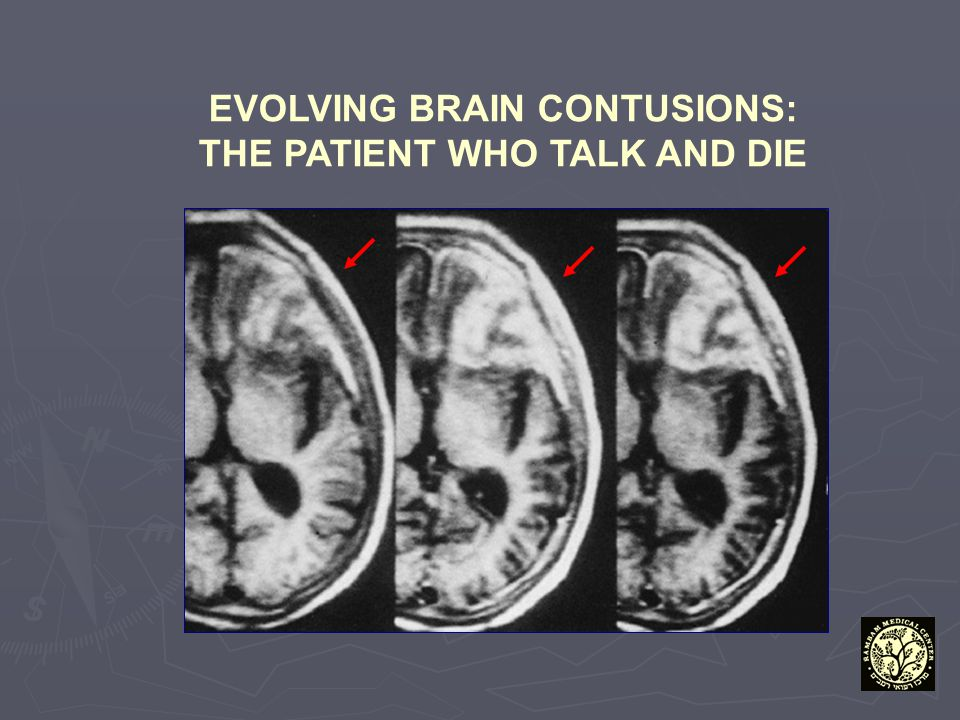 EVOLVING BRAIN CONTUSIONS: THE PATIENT WHO TALK AND DIE