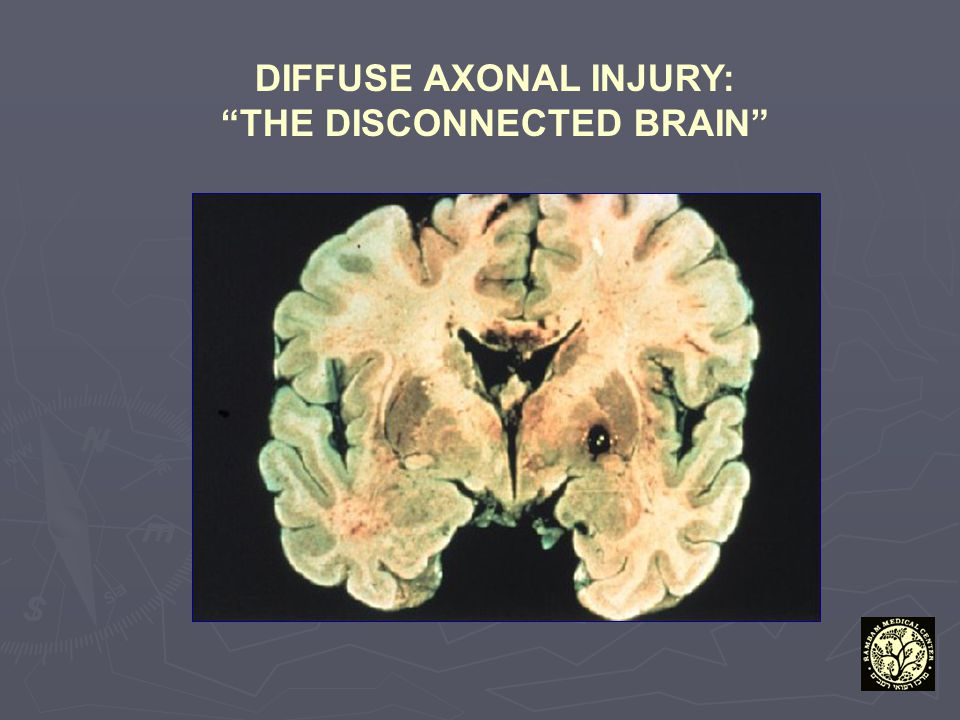 """DIFFUSE AXONAL INJURY: """"THE DISCONNECTED BRAIN"""""""