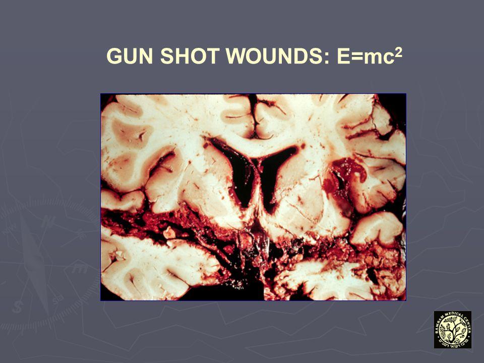 GUN SHOT WOUNDS: E=mc 2